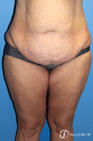 Denver Body Lift belt lipectomy, liposuction, mastopexy 5935 - Before Image