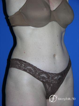 Denver Tummy Tuck 44 -  After Image 2