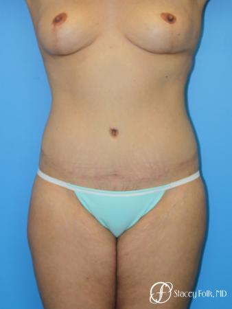 Denver Mommy makeover, breast reduction, abdominoplasty and liposuction 5353 - After Image