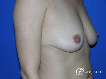 Denver Breast Augmentation 6 - Before and After Image 2