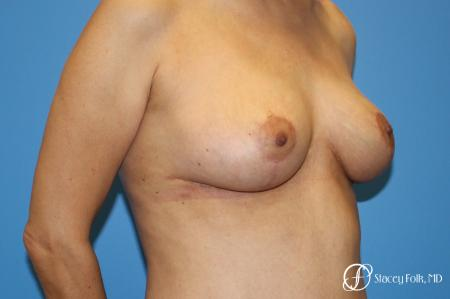Denver Breast Lift - Mastopexy 7984 -  After Image 2