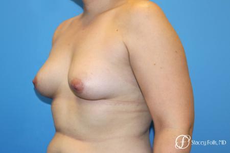 Denver FTM Top Surgery 5088 - Before Image 2