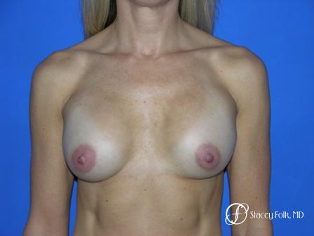 Denver Breast Revision 47 - Before Image