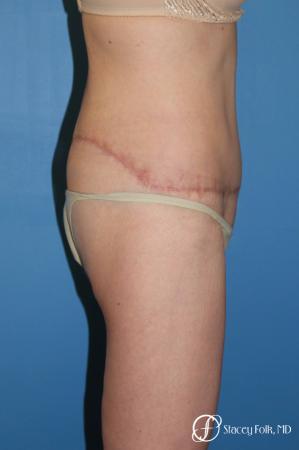 Denver Body Lift Belt lipectomy 5268 -  After Image 3