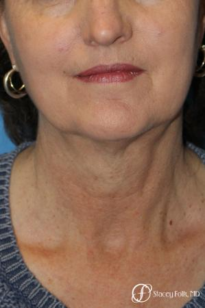 Denver Facial Rejuvenation Facelift, Blepharoplasty, Fat Transfer, Laser Resurfacing 10350 - Before Image 2