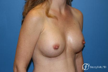 Denver Breast Augmentation using Textured Sientra Breast Implants 8414 -  After Image 3