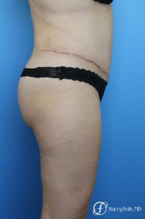 Tummy Tuck (Abdominoplasty) and Liposuction -  After Image 4