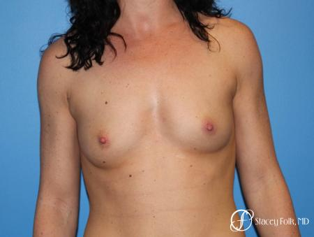 Denver Breast Augmentation using Sientra Breast Implants 7135 - Before Image 1