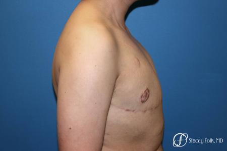 Denver Female to Male Top Surgery 5257 -  After Image 3