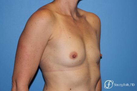 Denver Breast Augmentation 6611 - Before Image 2