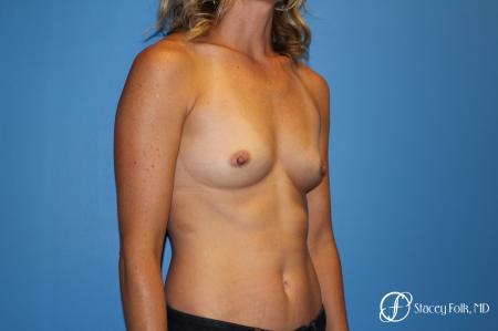 Denver Breast augmentation 4740 - Before Image 2