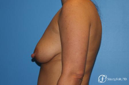 Denver Breast Lift and Augmentation 8629 - Before and After Image 3