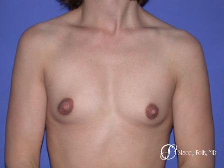 Denver Breast Augmentation 32 - Before Image 1