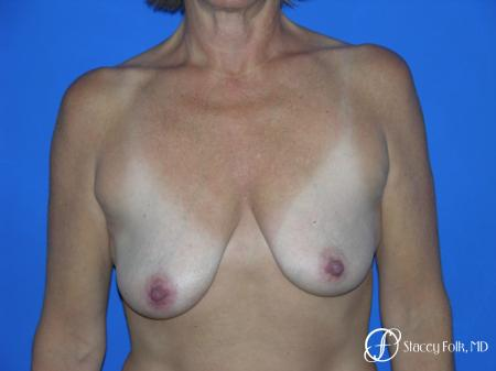 Denver Breast Lift and Augmentation 4557 - Before Image 1