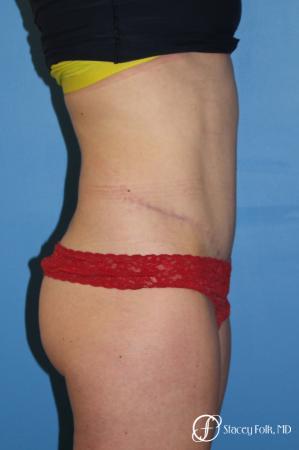 Denver Tummy Tuck - Abdominoplasty 8266 -  After Image 2