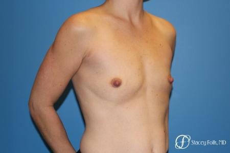 Denver Breast Augmentation using Textured Sientra Breast Implants 8414 - Before and After Image 3
