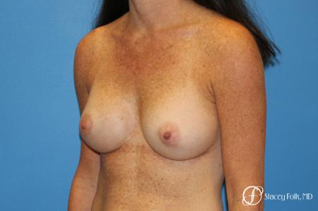 Denver Breast Augmentation using Sientra Silicone Gel Breast Implants 9362 -  After Image 2