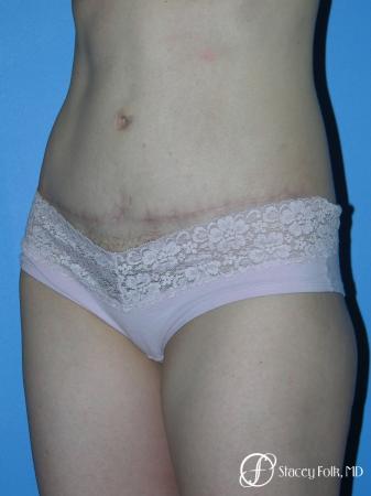Denver Tummy Tuck - Abdominoplasty 10444 -  After Image 2