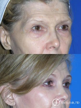 Denver Brow Lift and Upper Blepharoplasty 7161 -  After Image 1