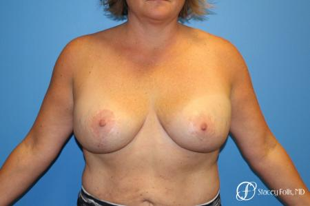 Breast Revision - Removal of Implant, Fat Transfer, Breast Lift (Mastopexy) - Before Image
