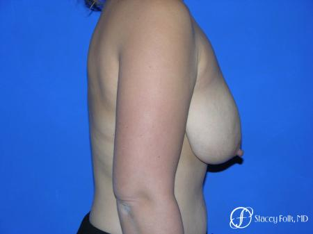 Denver Breast reduction 5842 - Before and After Image 3