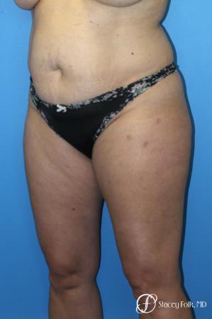 Tummy Tuck (Abdominoplasty) and Liposuction - Before Image 3