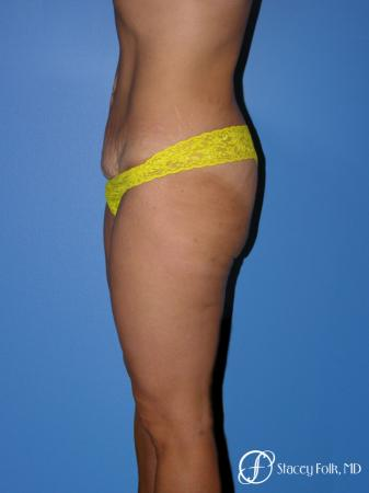 Denver Tummy Tuck Abdominoplasty 5368 - Before and After Image 3