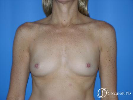 Denver Breast Augmentation 3633 - Before Image 1