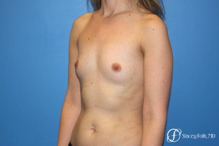 Denver Breast augmentation 7110 - Before Image 2