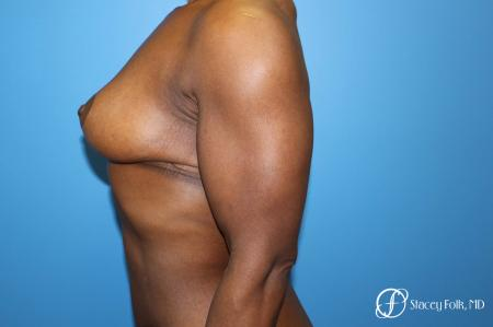 Denver Breast Reduction (Mastopexy) 7081 -  After Image 3