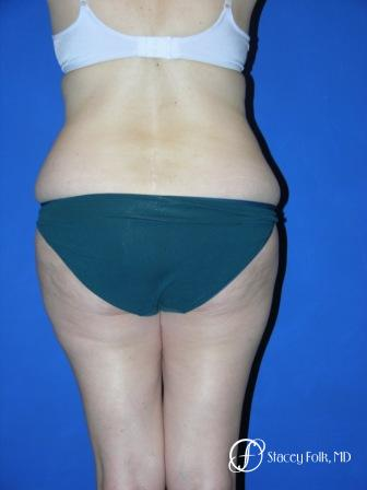 Denver Tummy Tuck 34 - Before and After Image 3