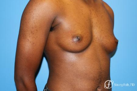 Denver FTM Female to male top surgery using gynecomastia technique 5497 - Before Image 2