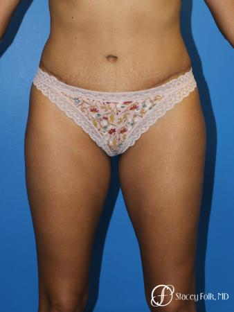 Tummy Tuck (Abdominoplasty) -  After Image 1
