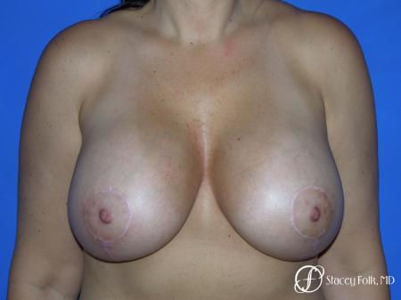 Denver Breast Revision 10094 - Before Image 1