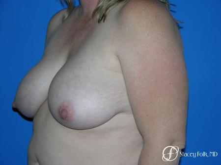 Denver Breast Reduction 4790 - Before Image 4
