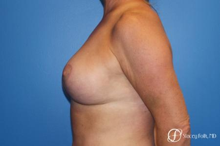 Denver Breast Lift 10252 -  After Image 2