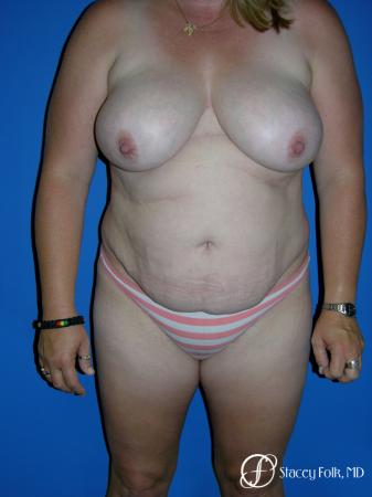 Denver Tummy Tuck 4783 - Before Image