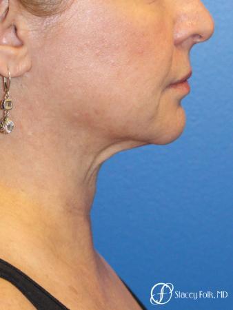 Denver Facial Rejuvenation 9894 - Before Image 1