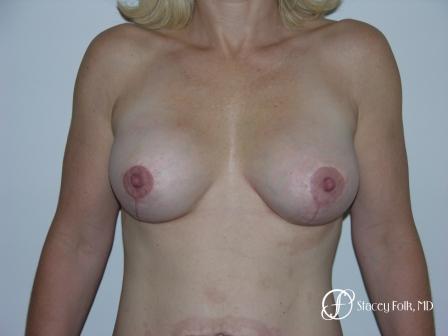 Denver Breast Revision 52 -  After Image 1