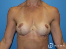 Denver Breast Lift - Mastopexy 8297 - After Image