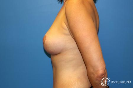Denver Fat Transfer Breast Lift Mastopexy with Fat Transfer to the Breast 6916 -  After Image 3