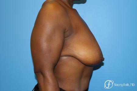 Denver Breast Lift - Mastopexy 7509 - Before Image 3