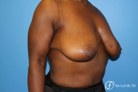 Denver Breast Reduction (Mastopexy) 7081 - Before Image 2