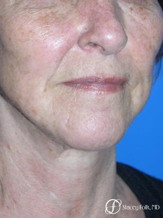 Denver Facial Rejuvenation Face Lift and Fat Injections 7129 -  After Image 2