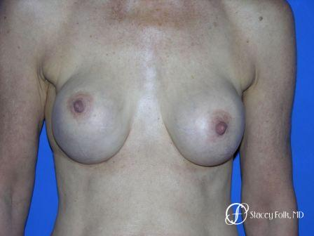 Denver Breast Revision 49 - Before Image