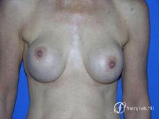 Denver Breast Revision 49 - Before Image