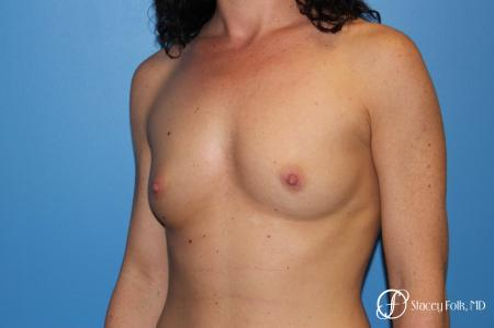 Denver Breast Augmentation using Sientra Breast Implants 7135 - Before Image 2