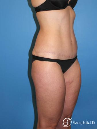Denver Tummy Tuck Abdominoplasty and liposuction 4880 -  After Image 2