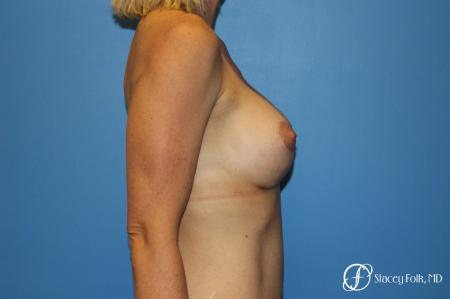 Breast augmentation with breast lift (Mastopexy) -  After Image 3