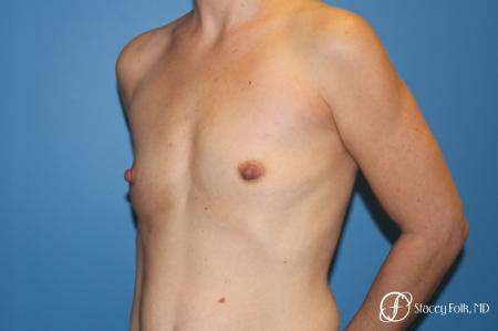 Denver Breast Augmentation using Textured Sientra Breast Implants 8414 - Before Image 2